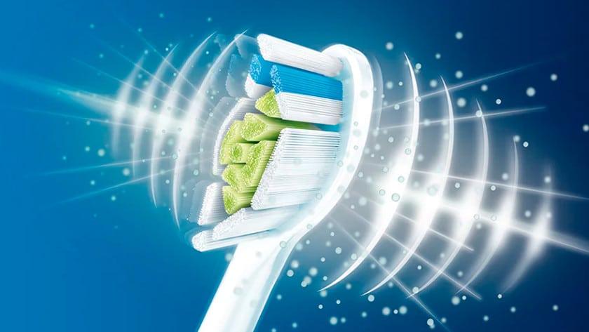 sonische tandenborstel